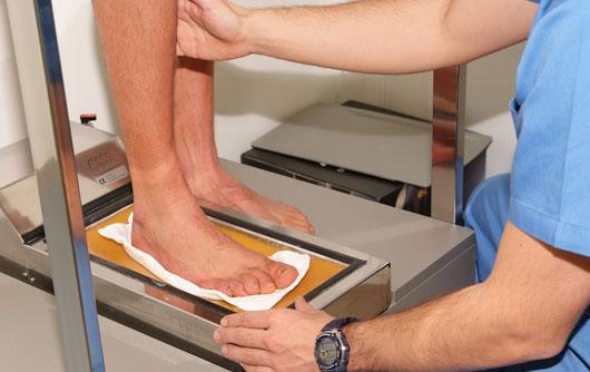 Top100 especialistas m dicos la importancia del calzado estudio biomec nico de la pisada 4 - Estudio biomecanico de la pisada ...