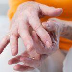 Artrosis ¿a qué edad empieza?