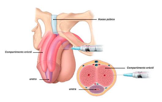 Disfunción-Eréctil,-problemas-de-ereccion Causas y Tratamiento