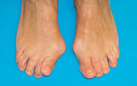 Hallux-Valgus-o-Juanete sintomas y causas