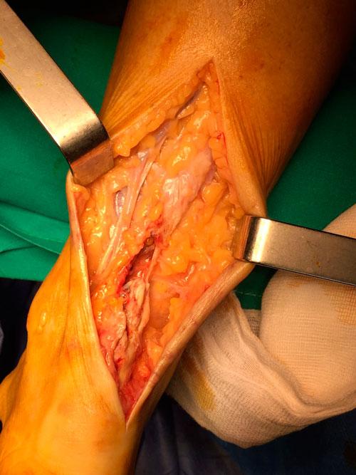 Degeneracion-y-rotura-del-tendon-de-aquiles