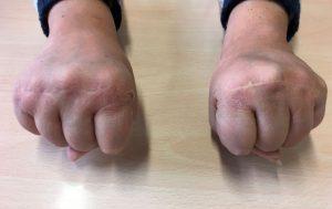 Puños cerrados Lupus--Eritematoso-cirugía-de-la-mano-y-traumatologia