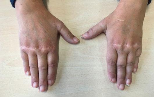 Manos extendidas Lupus--Eritematoso-cirugía-de-la-mano-y-traumatologia