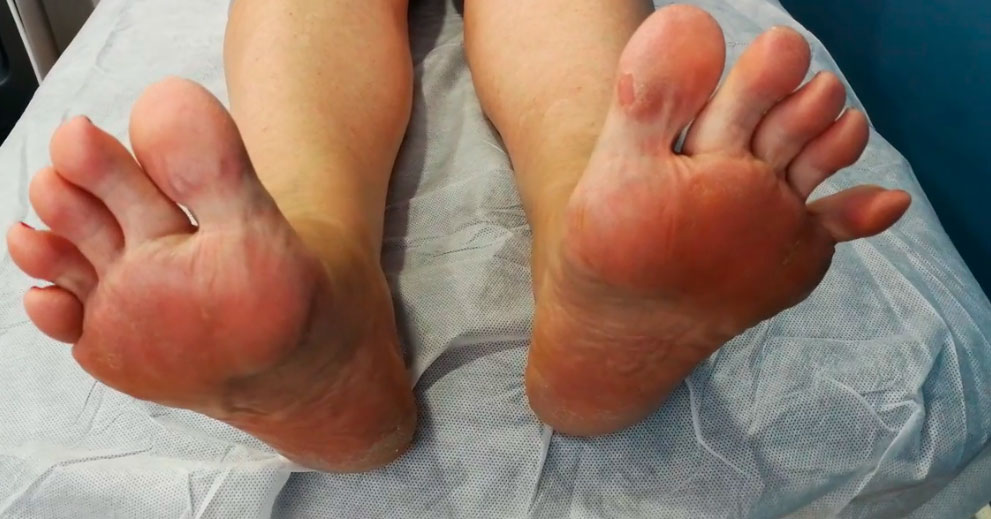 Podologia y Neuropatía Compresiva de Baxter Dr. Alvaro Iborra