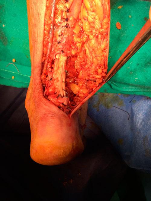 Reparacion-del-tendon-de-aqules-con-cirugia-abierta