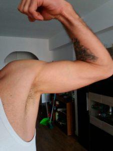 Resultado-de-la-reparación-de-la-Rotura-biceps-distal Traumatologia y Cirugia de Miembro superior