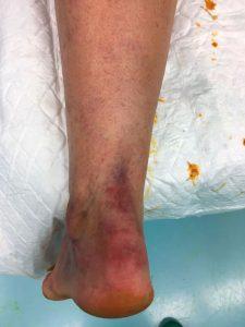 Rotura-del-tendon-de-aquiles Traumatologia