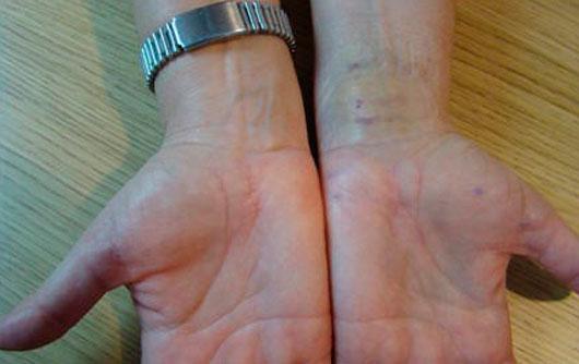 Traumatología y Sindrome-del-Túnel-del-Carpo