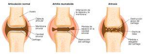 artrosis-y-condroprotectores tratamiento con cartilat complex