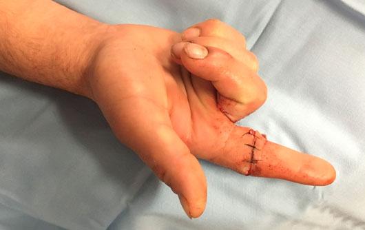 Sección flexor superficial y profundo 2º dedo Cirugia-de-la-mano-Metodo-Walant