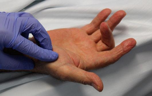 Rigidez 90º articulación interfalángica proximal tercer dedo